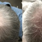 Hair Growth Supplements- Do They Work?